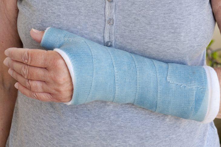 Broken Wrist Care at Panorama Ortho